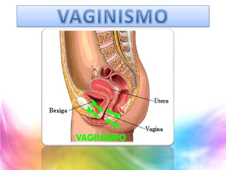 VAGINISMO<br />