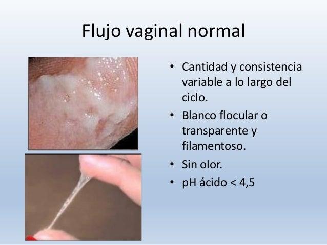 Servicio dama vaginal en Oviedo