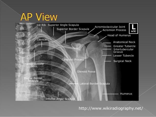 Shoulder X Ray