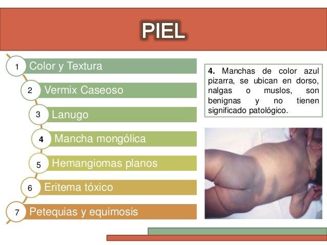 Eritema toxico recien nacido pdf creator