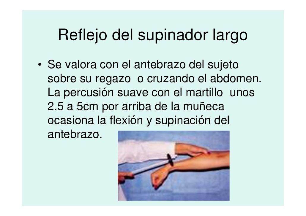 Lujo Supinación Festooning - Imágenes de Anatomía Humana ...