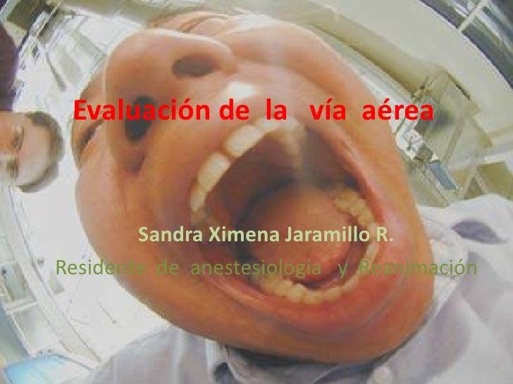 Evaluación de  la   vía  aérea<br />Sandra Ximena Jaramillo R.<br />Residente  de  anestesiología   y  Reanimación<br />