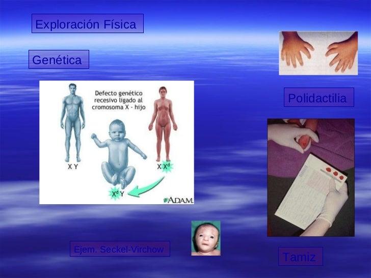 Exploración Física  Genética   Polidactilia  Ejem. Seckel-Virchow  Tamiz