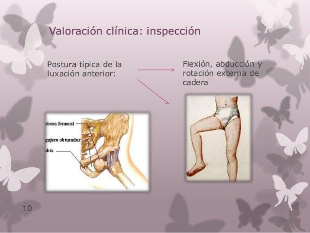 Valoración clínica: examen físico Cabeza femoral se palpa bajo los glúteos Impotencia funcional Macizo trocantéreo mas alt...