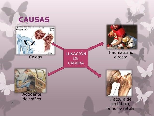 TIPOS DE LUXACIÓN Tipos 5 Luxación Anterior Luxación Posterior Luxación Central  Obturatrices  Pubianas  Perineales Aso...
