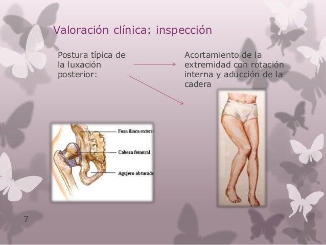 Valoración clínica: examen físico Cabeza femoral se palpa en arcada inguino – crural Dolor en región inguinal Incapacidad ...