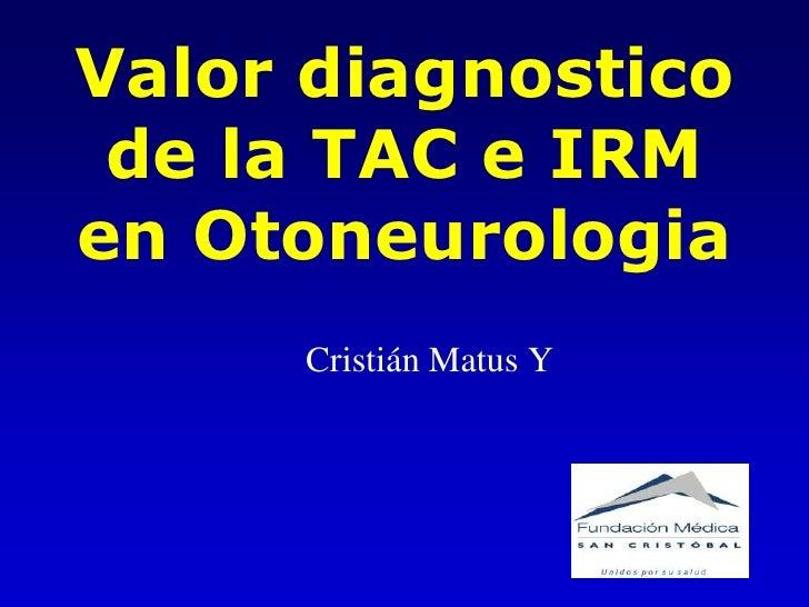 Valor diagnostico  de la TAC e IRM en Otoneurologia      Cristián Matus Y