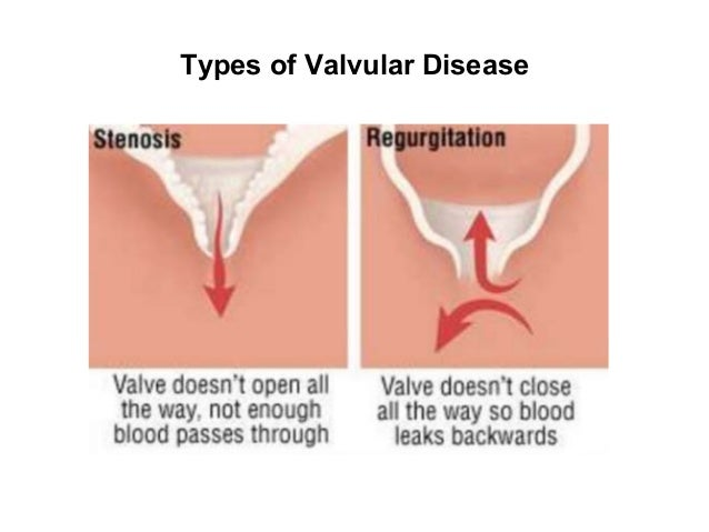 valvular heart disease When treatment for heart valve disease includes surgery, it can be traditional or minimally invasive balloon valvuloplasty you'll get medicine to help you sleep, and a surgeon will make a cut .