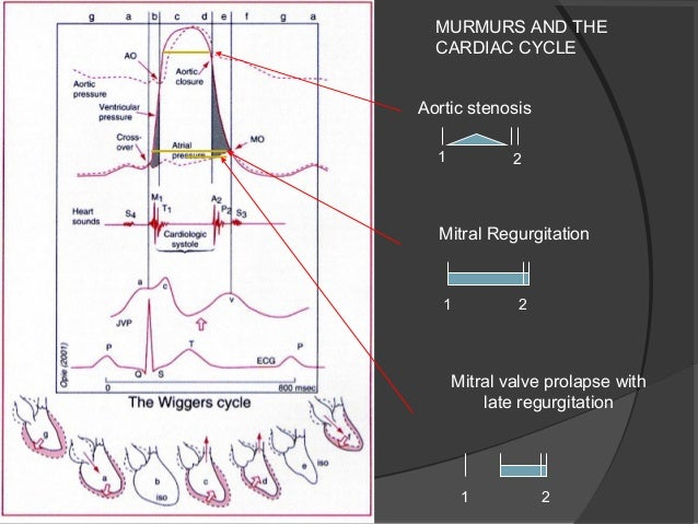 Valvular aortic stenosis wiggers diagram introduction to valvular heart disease kay johnstone rh slideshare net regurg stenosis wiggers diagram chf learn the wiggers diagram ccuart Gallery