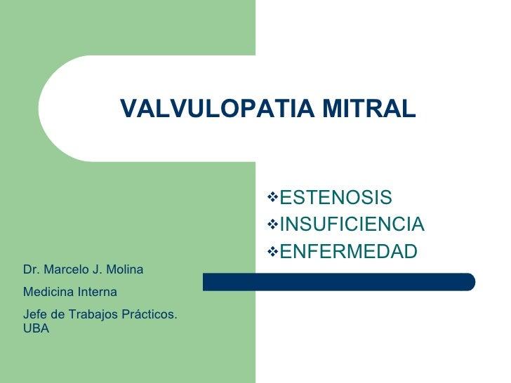 VALVULOPATIA MITRAL <ul><li>ESTENOSIS </li></ul><ul><li>INSUFICIENCIA  </li></ul><ul><li>ENFERMEDAD </li></ul>Dr. Marcelo ...