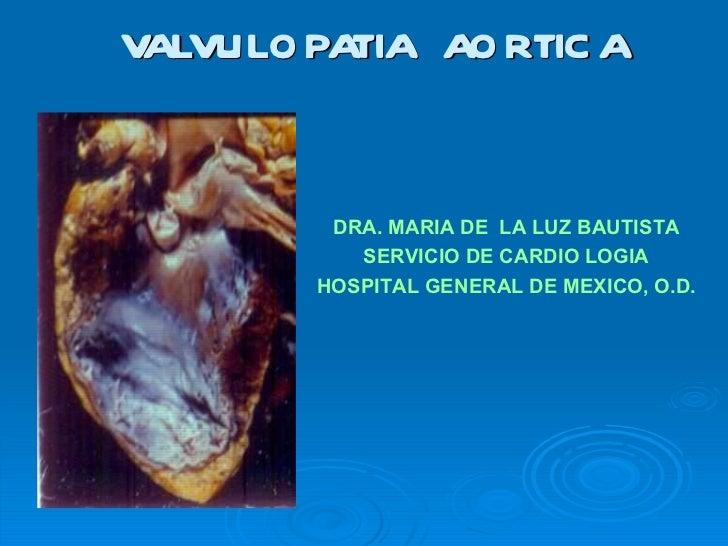 VALVULOPATIA  AORTICA DRA. MARIA DE  LA LUZ BAUTISTA SERVICIO DE CARDIO LOGIA HOSPITAL GENERAL DE MEXICO, O.D.