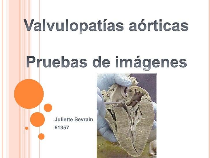 Juliette Sevrain61357