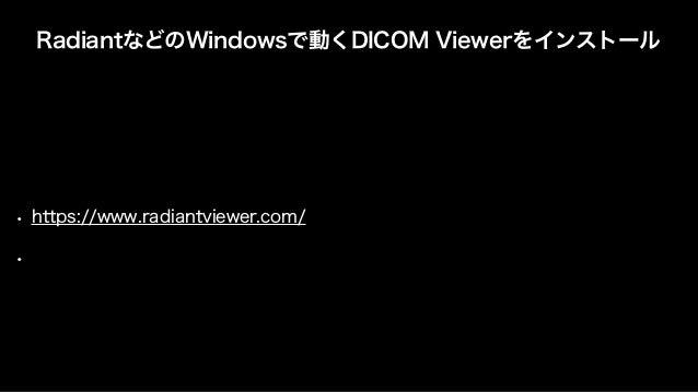 手順 • Holoeyes MD/XRを起動 • DICOM Viewrを開いて、見たい画像シーケンスを開いておく • VaNii Menuを起動(設定すると自動起動もできます) • VaNii MenuからMisc -> Windows Vi...