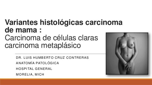 Variantes histológicas carcinoma de mama : Carcinoma de células claras carcinoma metaplásico DR. LUIS HUMBERTO CRUZ CONTRE...