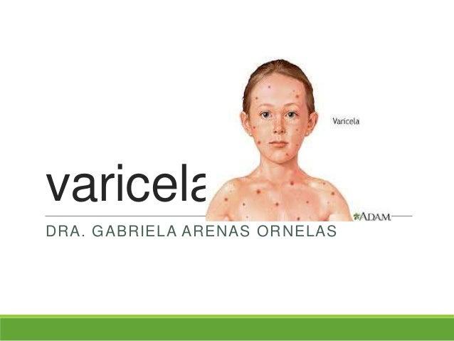 varicelaDRA. GABRIELA ARENAS ORNELAS