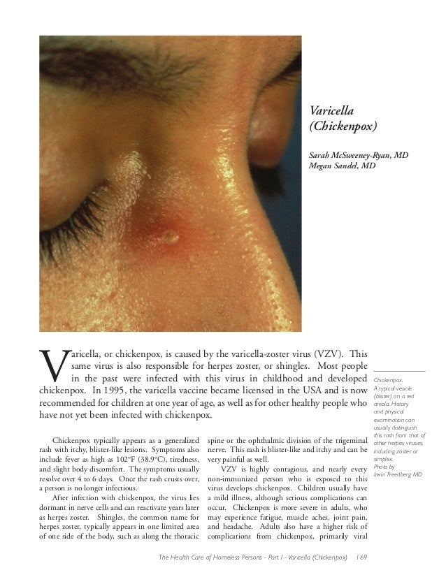 Varicella (Chickenpox) Sarah McSweeney-Ryan, MD Megan Sandel, MD  V  aricella, or chickenpox, is caused by the varicella-z...