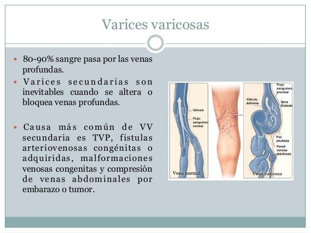 Los preparados de los asteriscos vasculares