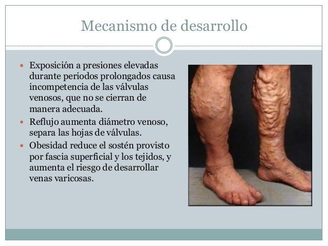 Los indicios de la obliteración de las venas de los pies