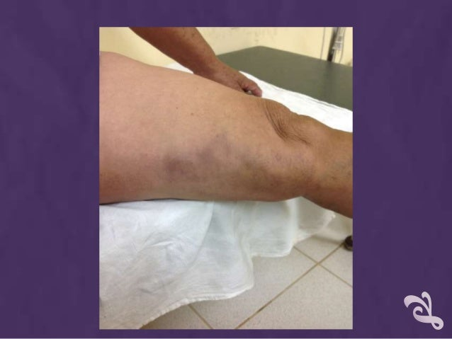 El aumento del pene sin intervenciones quirúrgicas