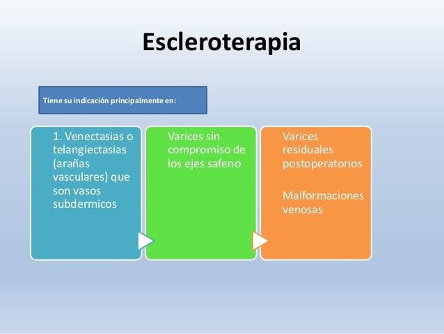 La ampliación varicosa sobre las pantorillas