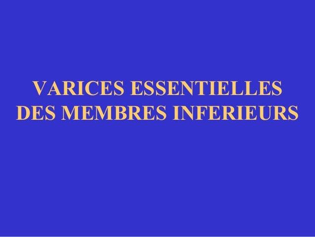 VARICES ESSENTIELLES DES MEMBRES INFERIEURS