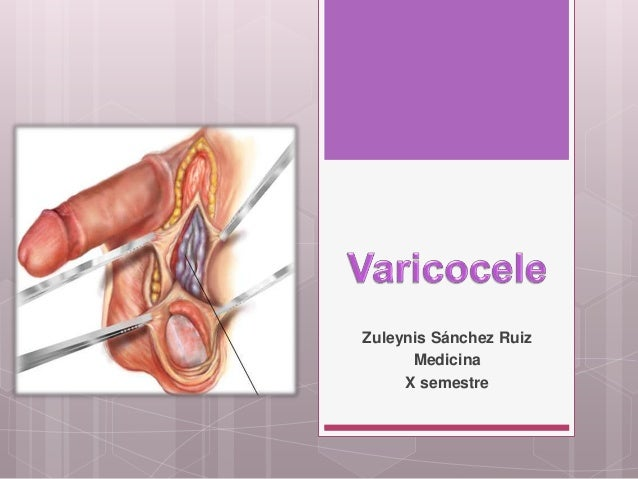 Zuleynis Sánchez Ruiz Medicina X semestre