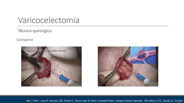 Varicocelectomia tecnica quirurgica