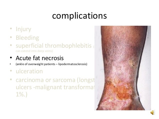complications of varicose veins