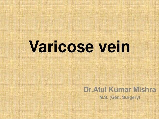 Varicose vein Dr.Atul Kumar Mishra M.S. (Gen. Surgery)