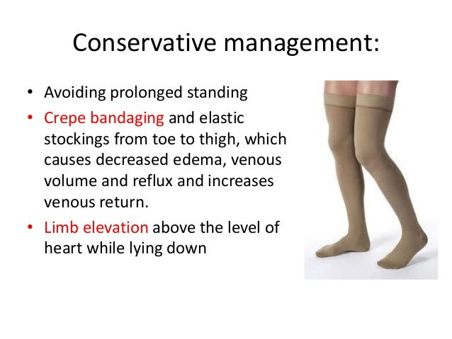management of varicose veins