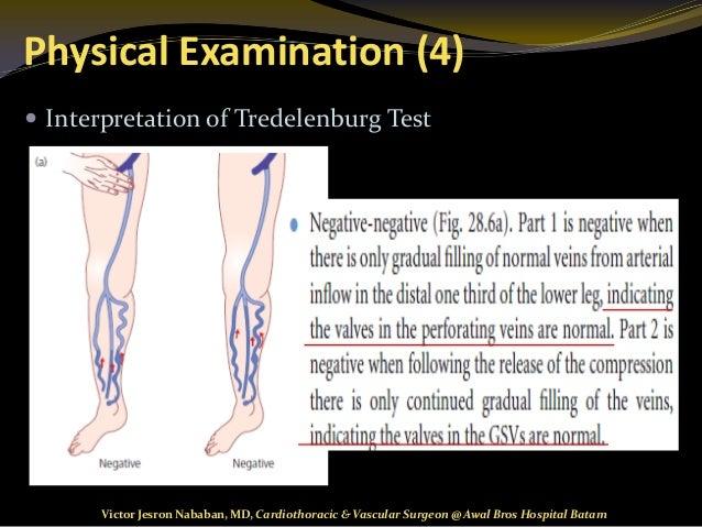 varicose vein examination
