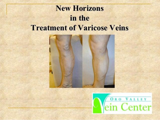 New HorizonsNew Horizons in thein the Treatment of Varicose VeinsTreatment of Varicose Veins