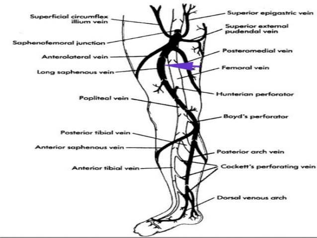Short saphenous vein(SSV) It begins by the fusion of number of small veins below and behind the lateral malleolus . Here ...