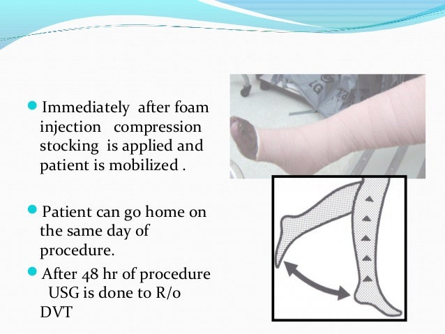 ADVANTAGE Minimal invasive procedure No post op scar Done with local anesthesia Minimal post-op pain Recurrence rate...