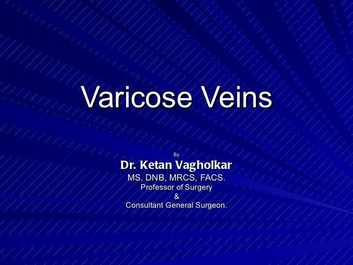 Varicose Veins By Dr. Ketan Vagholkar MS, DNB, MRCS, FACS. Professor of Surgery & Consultant General Surgeon.