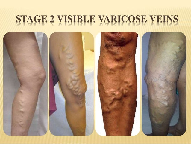 Varicose Veins Treatment in Hyderabad | Veindoctor Clinic