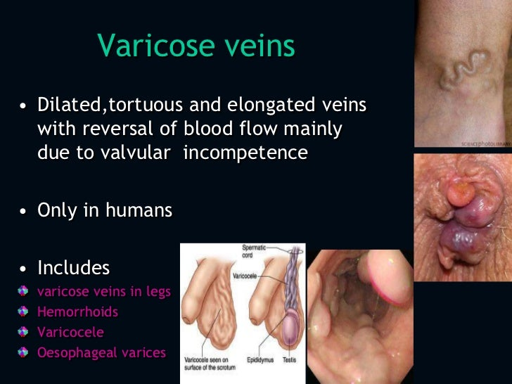 Varicose Veins Pictures, Images, and Stock Photos - iStock