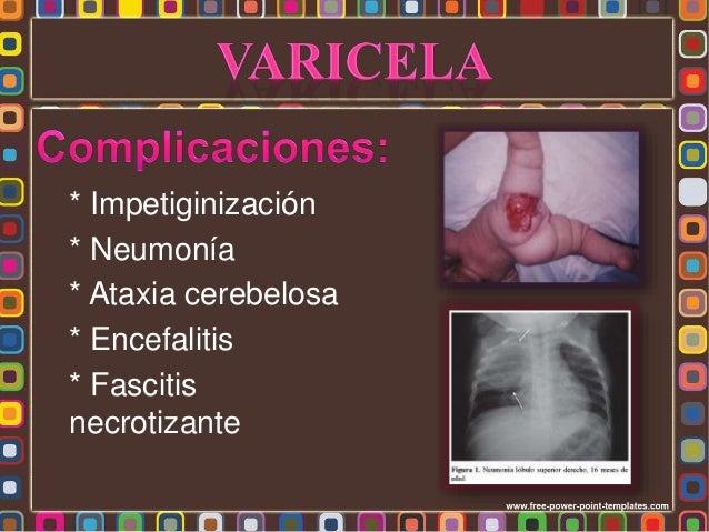 Varicela congénita - Alteraciones neurológicas - Cicatrices en la piel - Alteraciones oculares - Alteraciones esqueléticas...