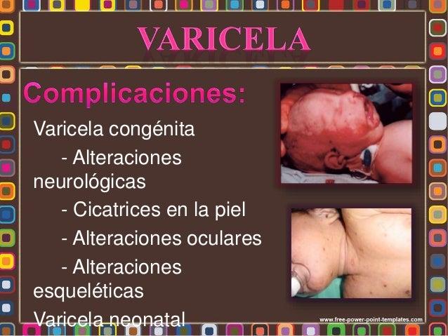 * Herpes zoster Infección primaria Células ganglionares dorsales