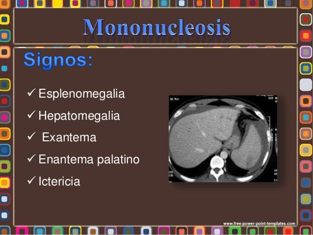 - Clínica - Prueba complementarias: * Hematología completa * Química sanguínea - Prueba de anticuerpos heterófilos o Monot...