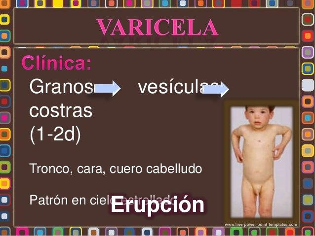 * Por clínica: Erupción vesiculosa y pruriginosa en oleadas * Antecedentes