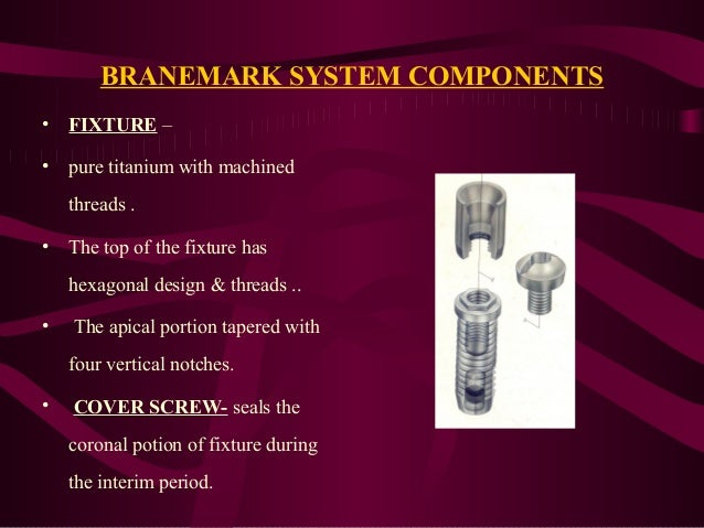 Various Implant Systems In India Final