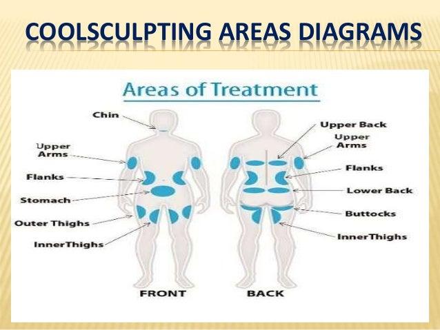 coolsculpting areas diagrams