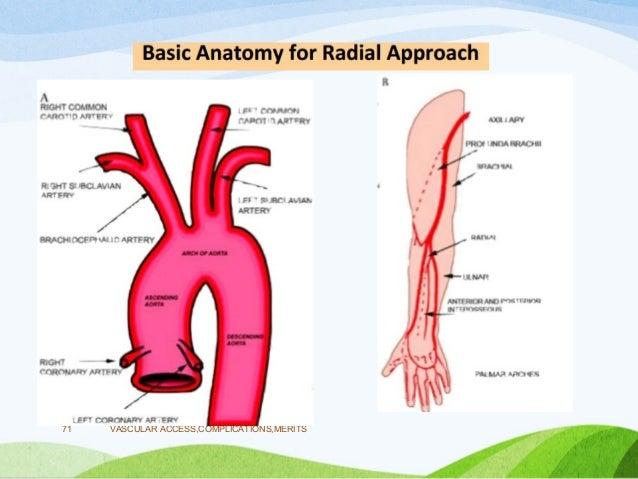 Vascular Access In Cardiac Catheterization