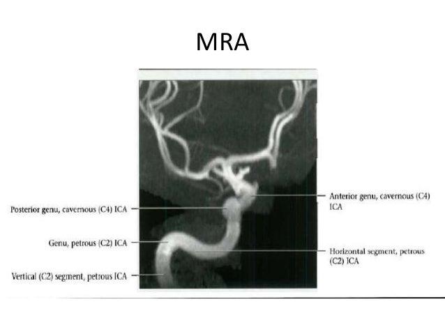 3D-DSA of petrous segment aneurysm