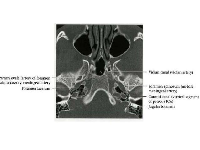 """Variant • Aberrant Carotid Artery – This vessel is, in fact, not the """"ICA"""", but rather ascending pharyngeal reconstitution..."""