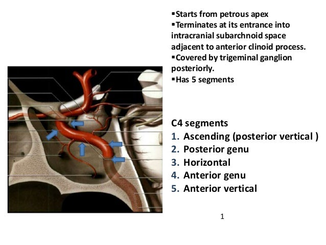 Mid arterial phase DSA Lateral view MRA Lateral DSA
