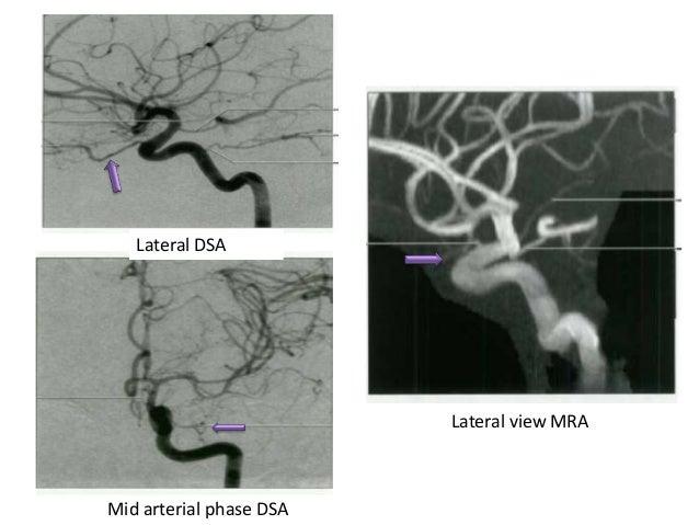 Posterior Communicating Artery Anomalies • Fetal Origin of the Posterior Cerebral Artery – A fetal PCOM or fetal origin of...