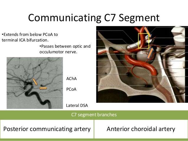 Posterior Communicating Artery Infundibulum • An infundibulum is a funnel shaped region of dilatation at the origin of the...