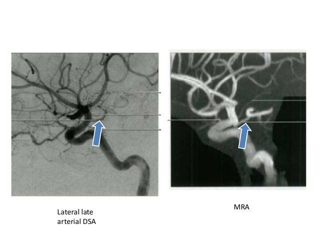Terminal Branches of ICA • Anterior Choroidal artery • Middle cerebral artery • Anterior cerebral artery